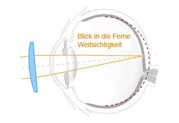Hübner Optik Weitsichtigkeit