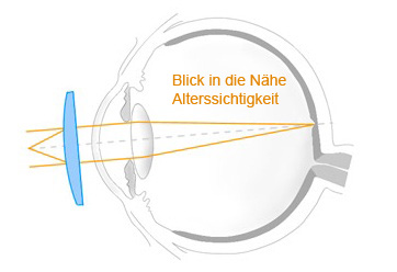 Hübner Optik Alterssichtigkeit