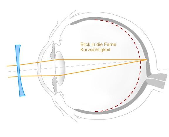 Hübner Optik Kurzsichtigkeit
